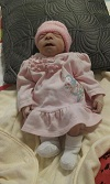 Bethani Beryl, baby with anencephaly