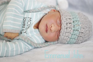 Emmanuel John, baby with anencephaly