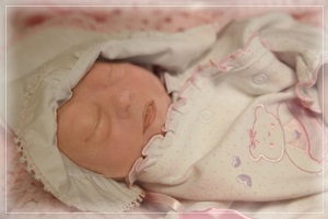 Gracelyn, baby with anencephaly