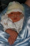Isaac Ayden, baby with anencephaly