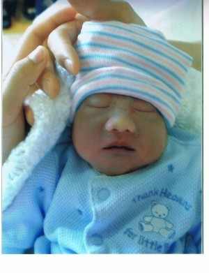 Jaden Thien, baby with anencephaly