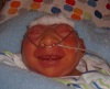 Konnor, baby with anencephaly