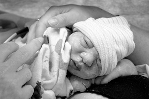 Marvella Jean Love, baby with anencephaly