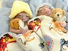 Matthew and Noah, twins with anencephaly