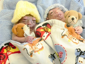 Matthew James and Noah Ryleigh, identical twins with anencephaly