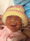 Railyn Hope, baby with anencephaly