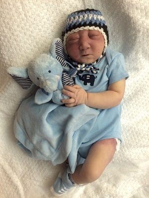 Shane Michael Haley, baby with anencephaly