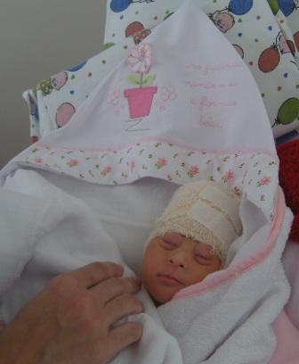 Vitoria, baby with anencephaly