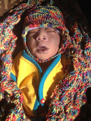 Wonderful Legacy Asante, baby with anencephaly